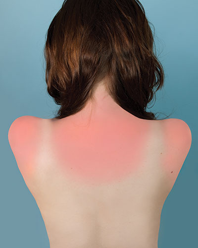 """Brea Souders, """"Sunburn in Naples"""", 2010, from the series """"Counterforms"""", digital C-print, 20x16"""""""